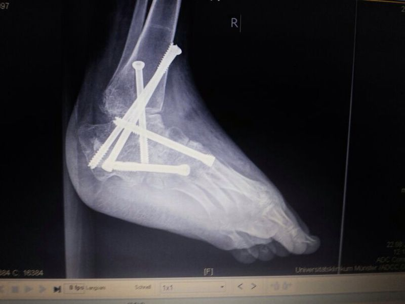 Nagel Patella Syndrom Fuß nach Operation